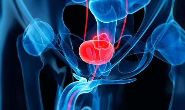 Ученые назвали три опасных симптомов начинающегося рака мочевого пузыря