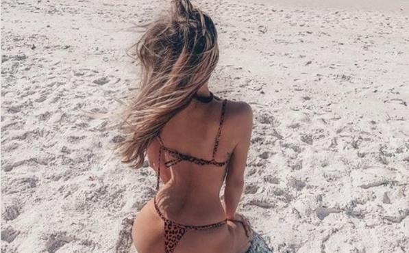 Российская модель впервые показала шрам на спине