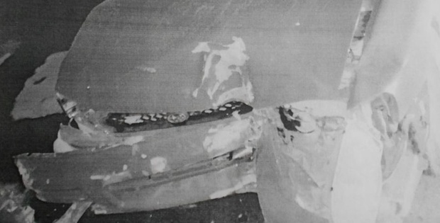 Тюменец, врезавшись в столб на машине, только утром обратился в больницу за помощью
