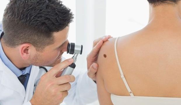 Тюменцы могут записаться на бесплатную диагностику меланомы
