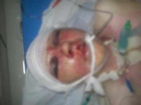 Женщина, которую избили на улице в Тобольске, скончалась от полученных травм